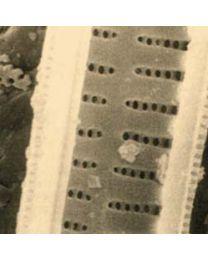 1297 Papel filtro con diatomeas